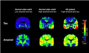 Study: Alzheimer's Diagnosis Possible Years Before Onset of Symptoms With Scan