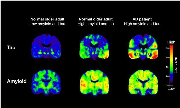 New Study Says Alzheimer's Diagnosis Possible Years Before Signs of Disease