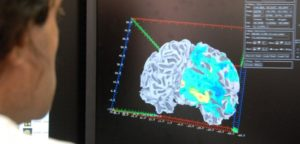 Altered Brain Activity In Obese Women: Study Shows That Activity In The Reward Centers Of Obese Women React Differently To Food