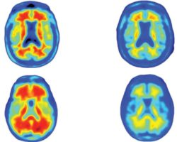 Amazing New Breakthrough In Alzheimer's Study: Antibody Erases All Signs Of The Disease In The Brain