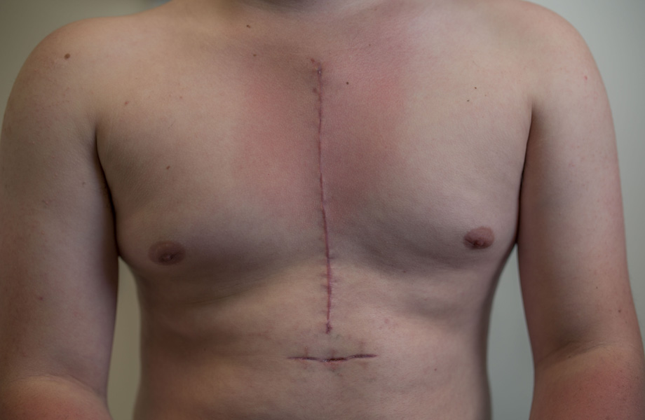 scars-on-hamish-chest-after-surgery-data