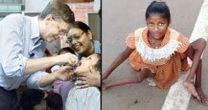 Polio Vaccine Causes Huge Polio Epidemic in India: Thanks, Mr. Gates